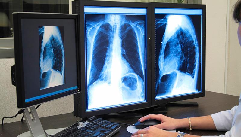 Radiología digital en Cuernavaca